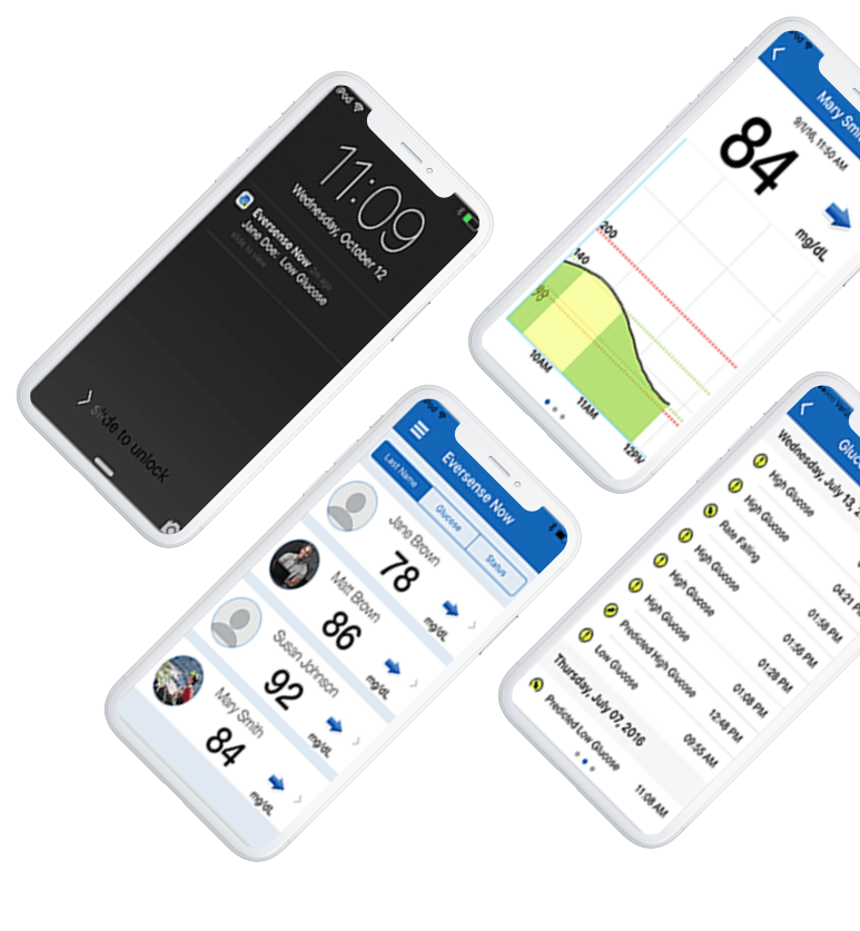 Real-Time Glucose Mobile App | Eversense Continuous Glucose